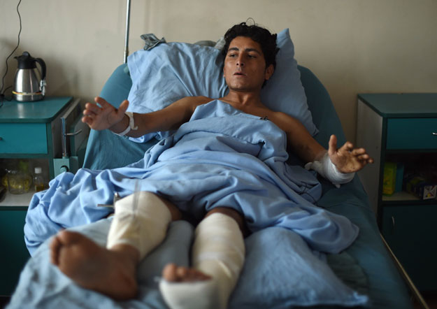 in this photograph taken on november 9 2015 a wounded afghan national army ana soldier gestures after receiving treatment at sardar mohammed daoud khan military hospital in kabul photo afp