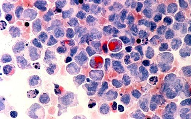 scientists decipher 11 subtypes in acute leukaemia gene study