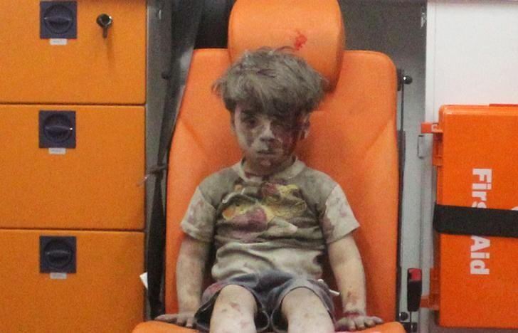 Five-year-old Omran Daqneesh, with bloodied face, sits inside an ambulance after he was rescued following an airstrike in the rebel-held al-Qaterji neighbourhood of Aleppo, Syria. PHOTO: REUTERS
