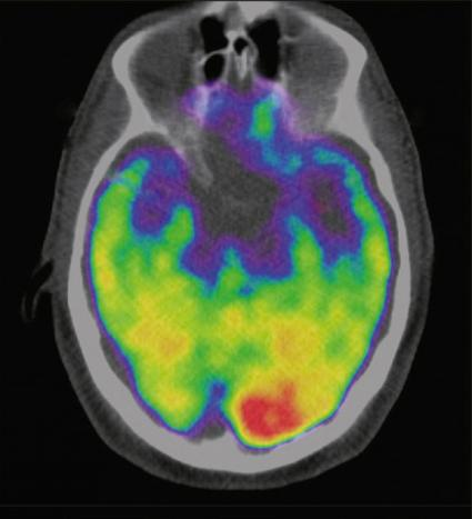 a scan of a brain used in a study carried out by massachusetts general hospital and harvard medical school which associates the brain region called the amygdala an area linked to stress to greater risk of heart disease and stroke is seen in an undated image released january 11 2017 by the lancet which published the reasearch photo reuters
