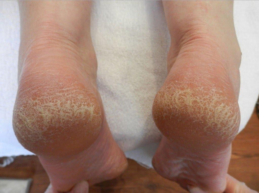 7 desi remedies for cracked heels