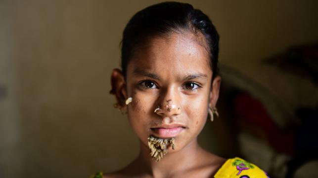 bangladesh treats first case of tree girl syndrome