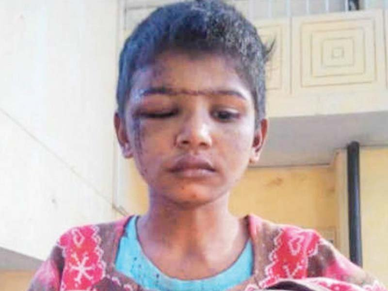 tayyaba torture case child maid s father dubs torture claims baseless