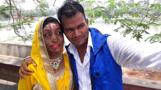 acid attack victim finds love