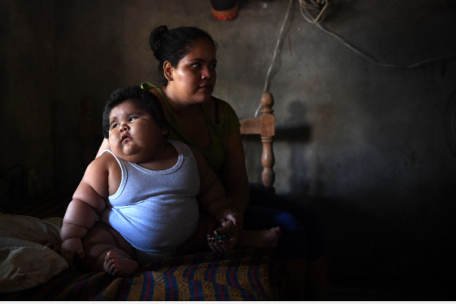 Ten-month-old Luis Gonzales (L) and his mother Isabel Pantoja, 24, are pictured at their home in Tecoman, Colima state, Mexico. Luis Manuel Gonzales is almost like any ten-month-old baby; he babbles his first words and wants to touch everything, but he has a dramatic difference that puts his life at stake: he weighs 28 kilos. PHOTO: AFP