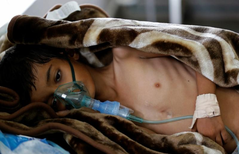 an eight year old malnourished boy lies on a bed in the emergency ward of a hospital in sanaa yemen photo reuters