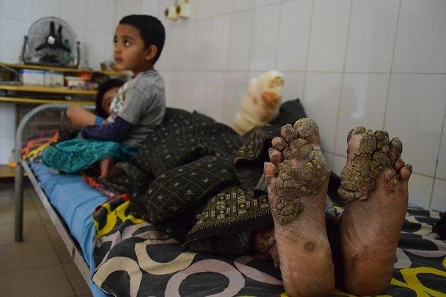 after 24 surgeries bangladesh tree man relapses