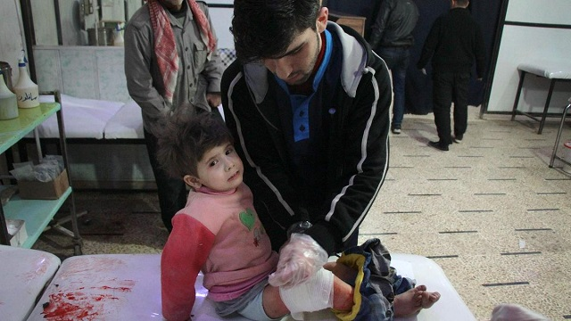 a wounded syrian girl receives treatment at a makeshift hospital following reported air strikes on the rebel held besieged town of douma in eastern ghouta photo afp