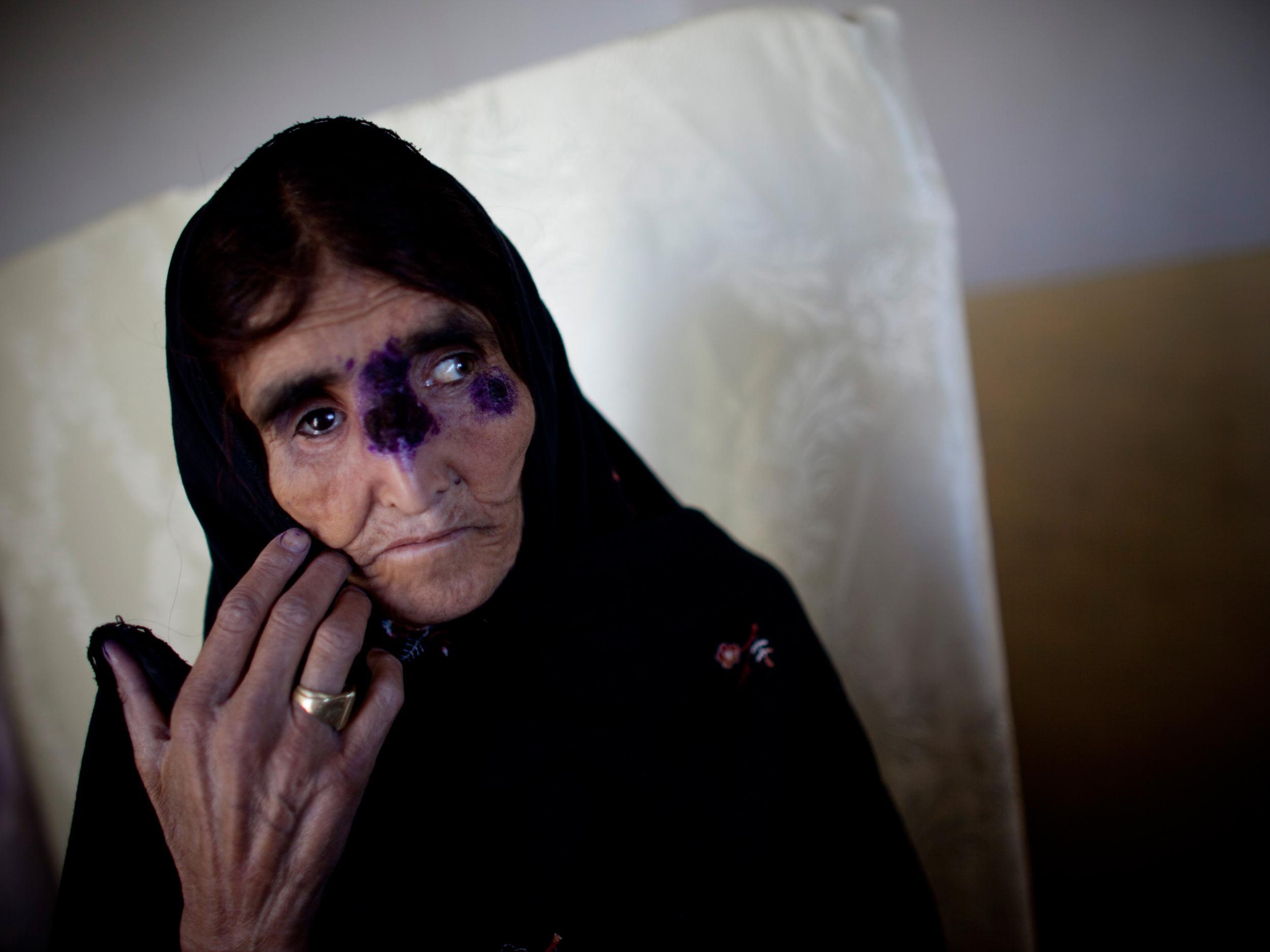 leishmania outbreak in mohmand