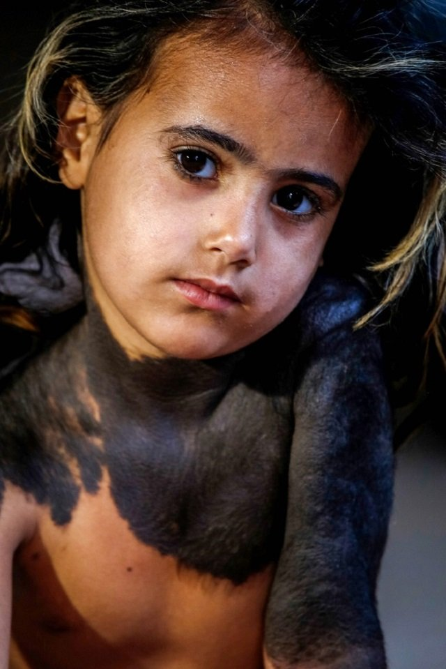 in an iraqi village a four year old girl hides skin disease from neighbours
