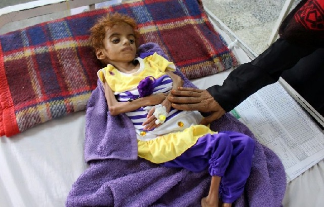 A Yemeni child suffering from malnutrition is measured at a hospital in the Hajjah province, western Yemen, this month. PHOTO AFP