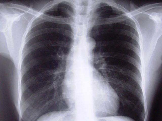 according to available data the incidence of tb per 100 000 in pakistan is 181 photo file