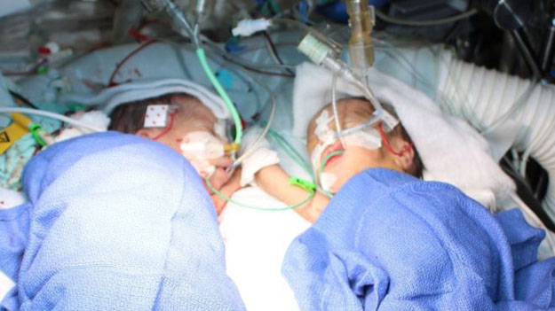 20 year old woman in bangladesh gave birth to twins days after first child was born photo bbc file