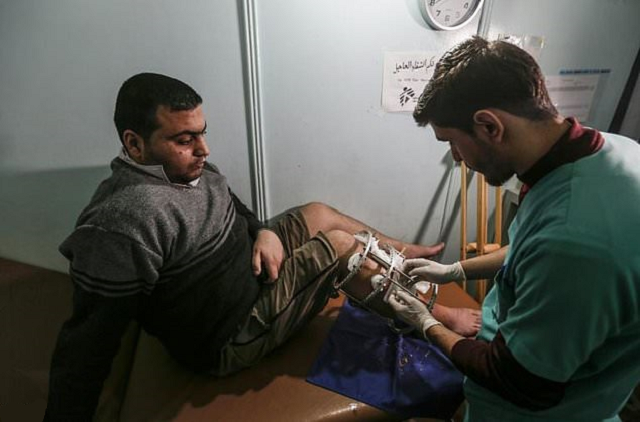 ezzedine al baz has had five operations on his leg since being shot a year ago photo afp