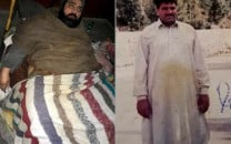 gujranwala man pleads with doctors to amputate his 150kg leg
