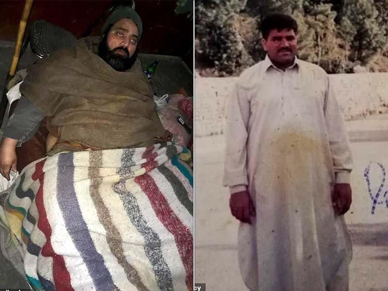 muhammad mushtaq has elephantiasis   caused by a parasitic infection photo mail online