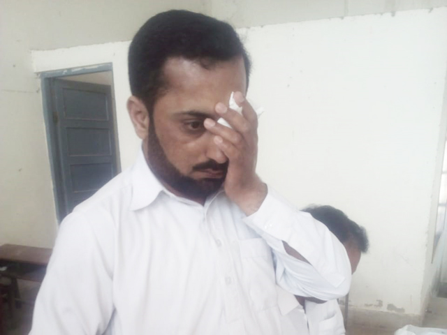 deputy superintendent muhammad ramzan was hit on face near his left eye almost turning him blind in one eye photo express