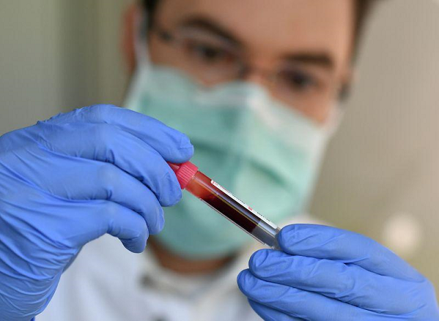andreas wieser from the department of infection and tropical medicine at the university of munich works with blood samples for a study about the coronavirus disease covid 19 in munich germany april 17 2020 photo reuters