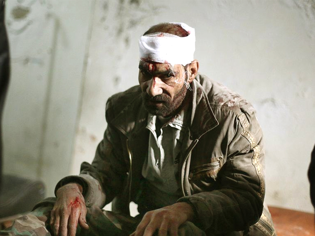 A Syrian local waiting at a make-shift hospital in the rebel-held Damascus suburb of Douma. PHOTO: AFP