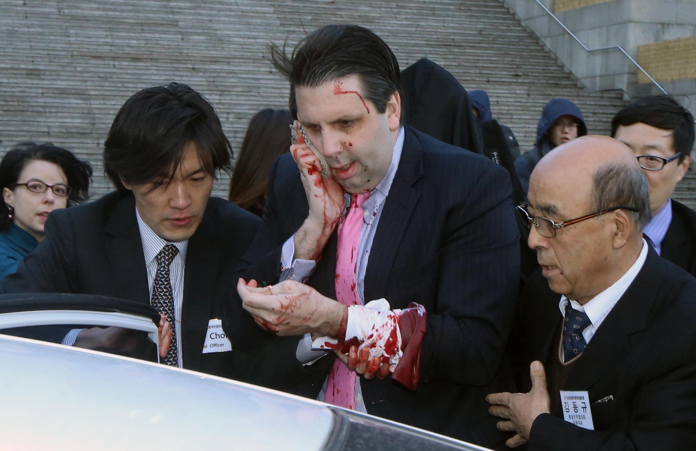 U.S. Ambassador to South Korea Mark Lippert leaves after he was slashed in the face by an unidentified assailant at a public forum in central Seoul March 5, 2015. PHOTO: REUTERS